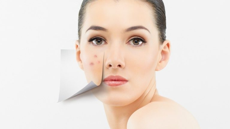How To Get Rid Of Acne Scarring For Good