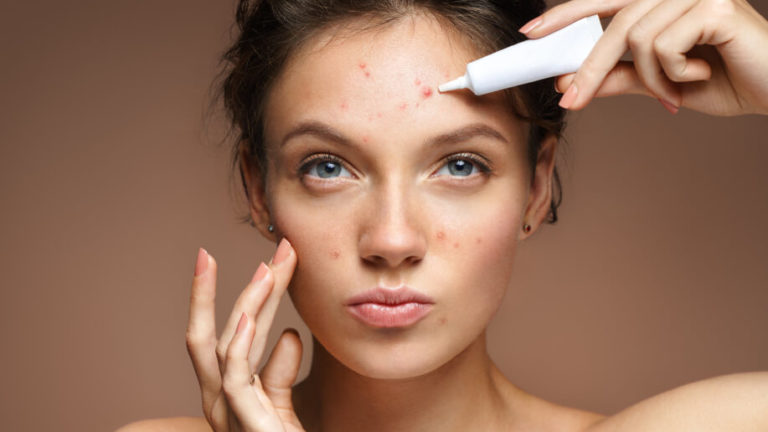The Only Way To Get Rid Of Acne Scars